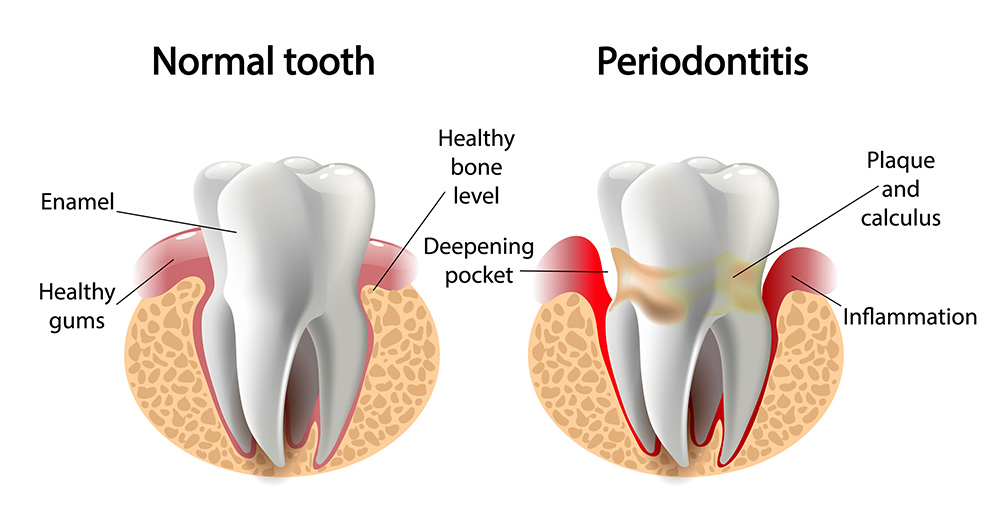 Periodontal Infections