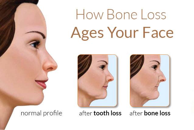 jawbone loss